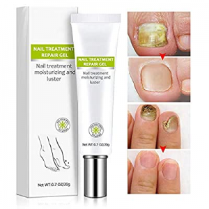 One Day Only!Nail Repair Cream now 10.0% off , Effective Toenail Fungus Treatment Fungus Remover F..